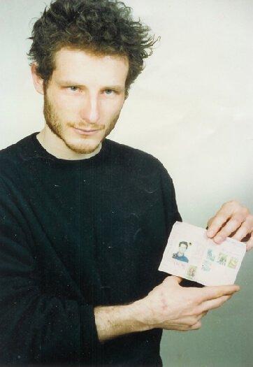 1992 per mostrare una cicatrice